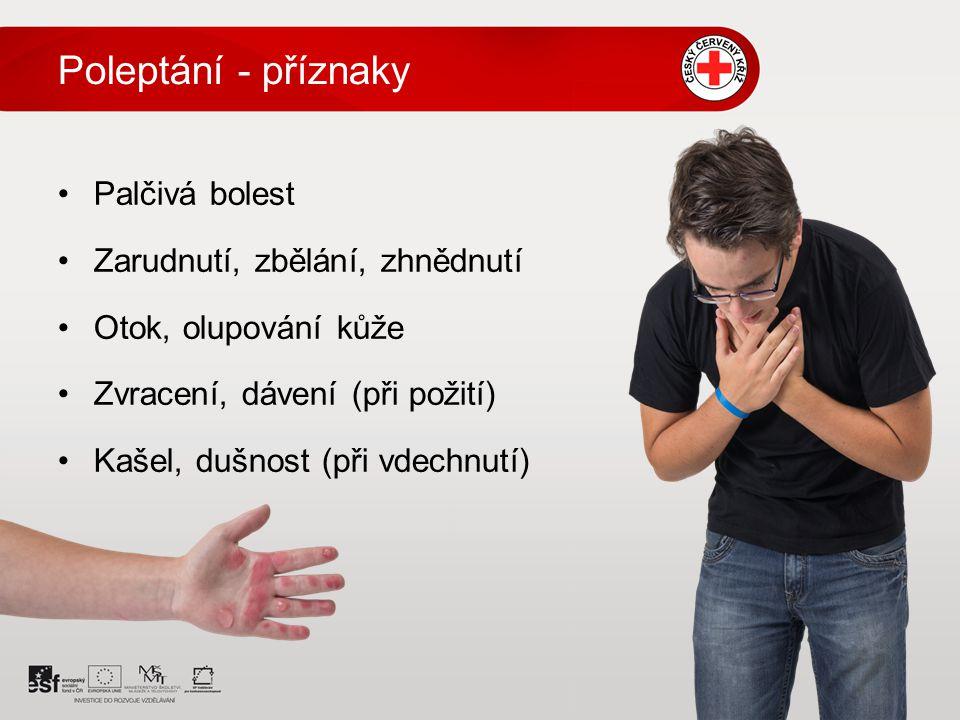 Poleptání - příznaky Palčivá bolest Zarudnutí, zbělání, zhnědnutí