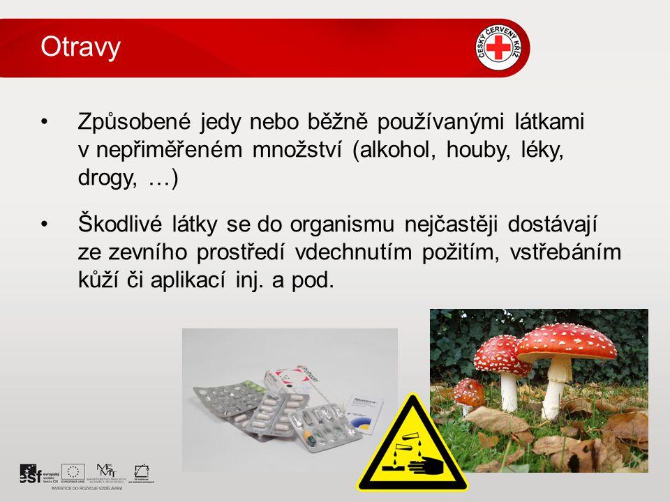 Otravy Způsobené jedy nebo běžně používanými látkami v nepřiměřeném množství (alkohol, houby, léky, drogy, …)