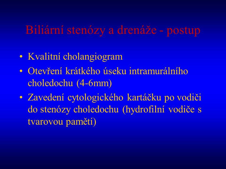 Biliární stenózy a drenáže - postup