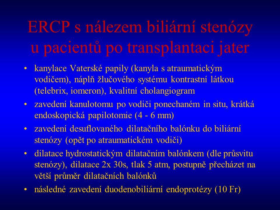 ERCP s nálezem biliární stenózy u pacientů po transplantaci jater