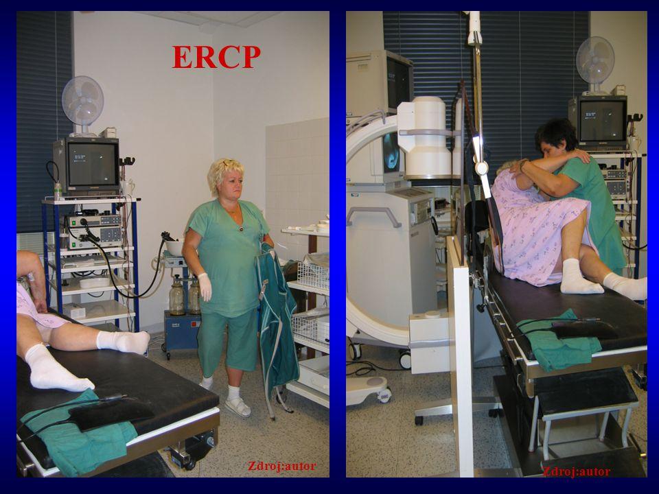 ERCP Zdroj:autor Zdroj:autor