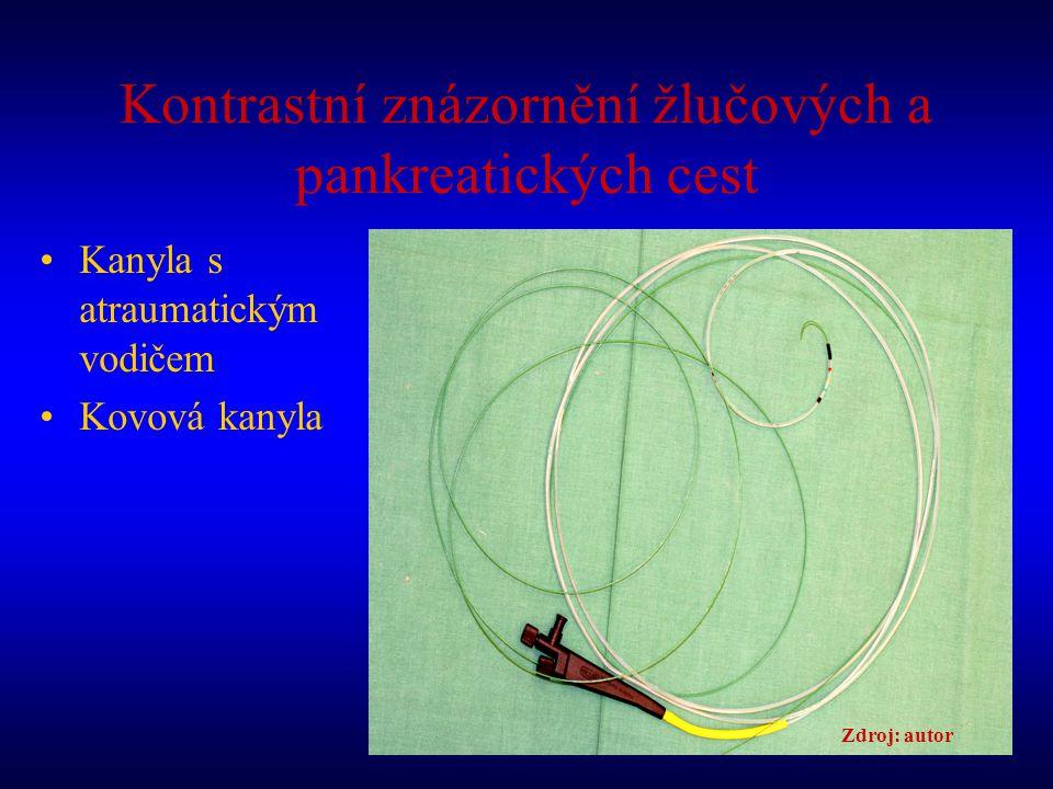 Kontrastní znázornění žlučových a pankreatických cest