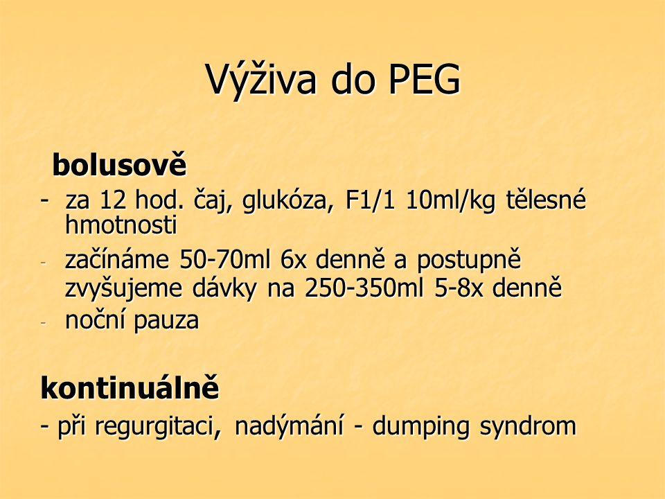 Výživa do PEG bolusově kontinuálně