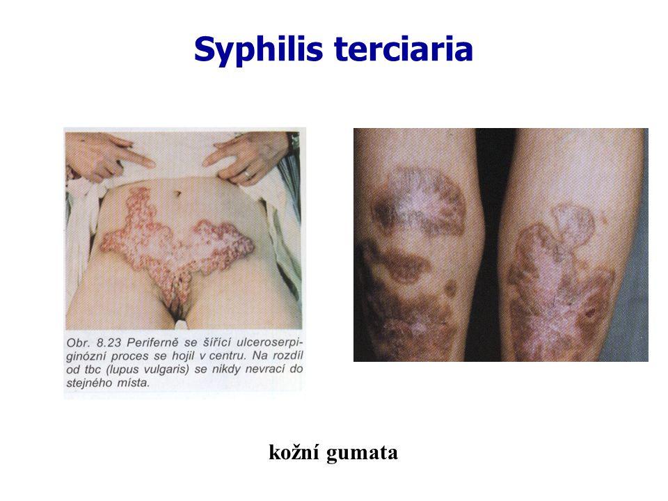 Syphilis terciaria kožní gumata