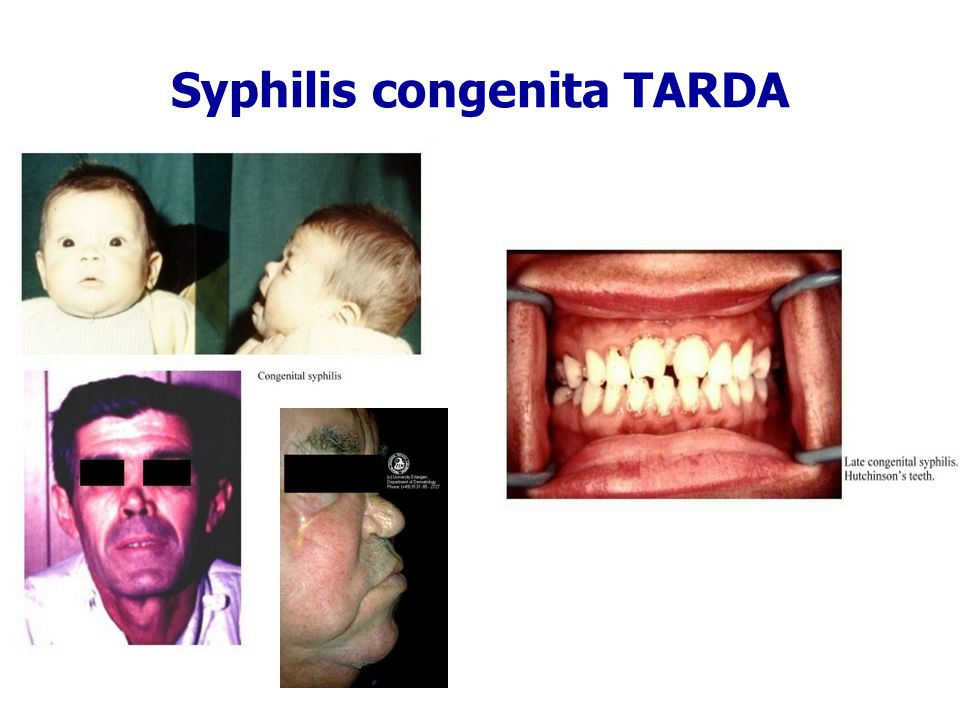 Syphilis congenita TARDA
