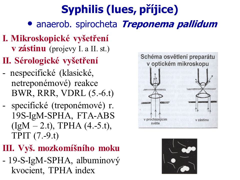 Syphilis (lues, příjice) • anaerob. spirocheta Treponema pallidum