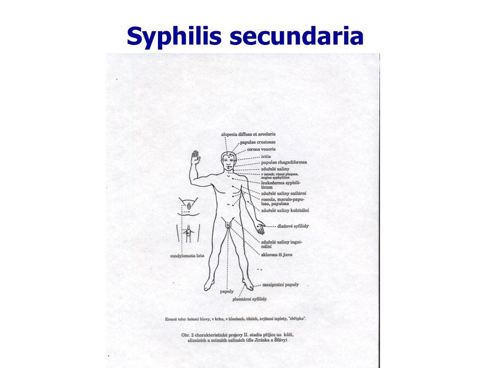 Syphilis secundaria