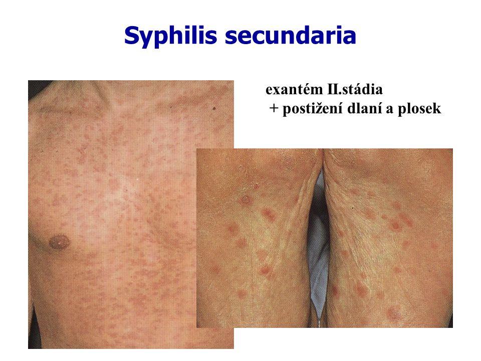 Syphilis secundaria exantém II.stádia + postižení dlaní a plosek