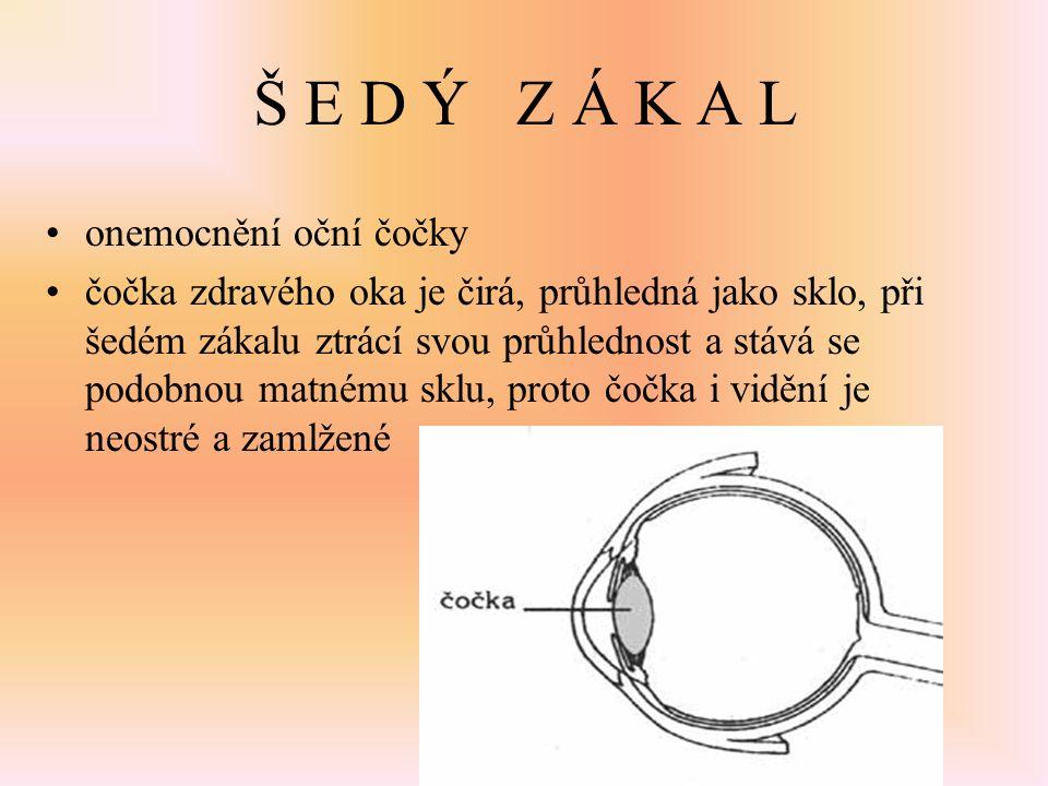 Š E D Ý Z Á K A L onemocnění oční čočky