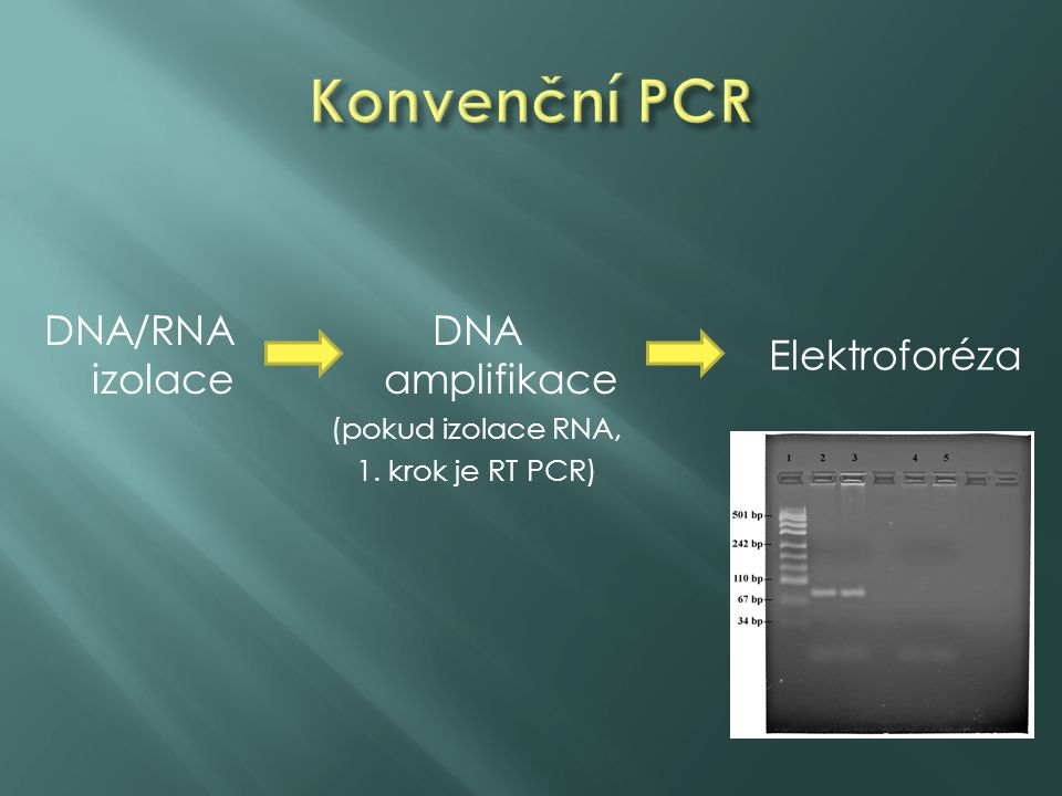 Konvenční PCR DNA/RNA izolace DNA amplifikace Elektroforéza