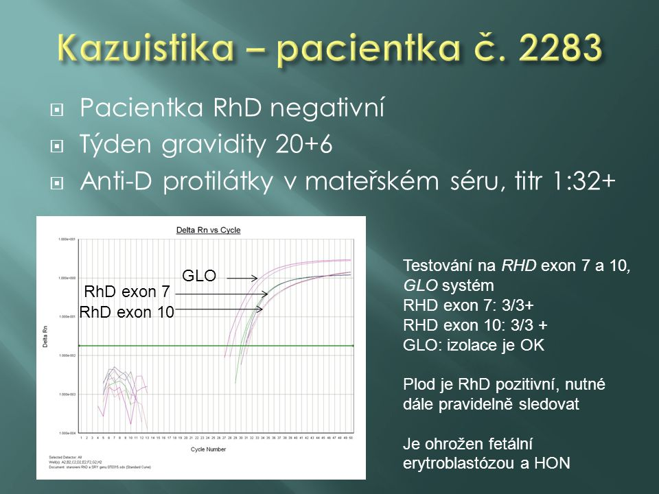 Kazuistika – pacientka č. 2283