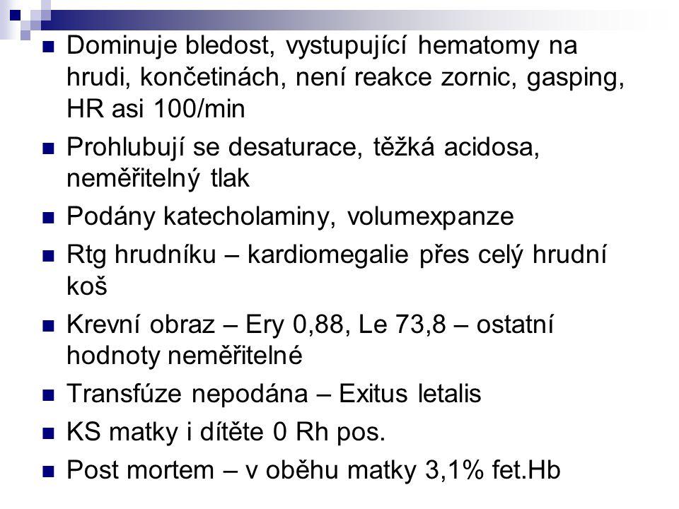 Dominuje bledost, vystupující hematomy na hrudi, končetinách, není reakce zornic, gasping, HR asi 100/min