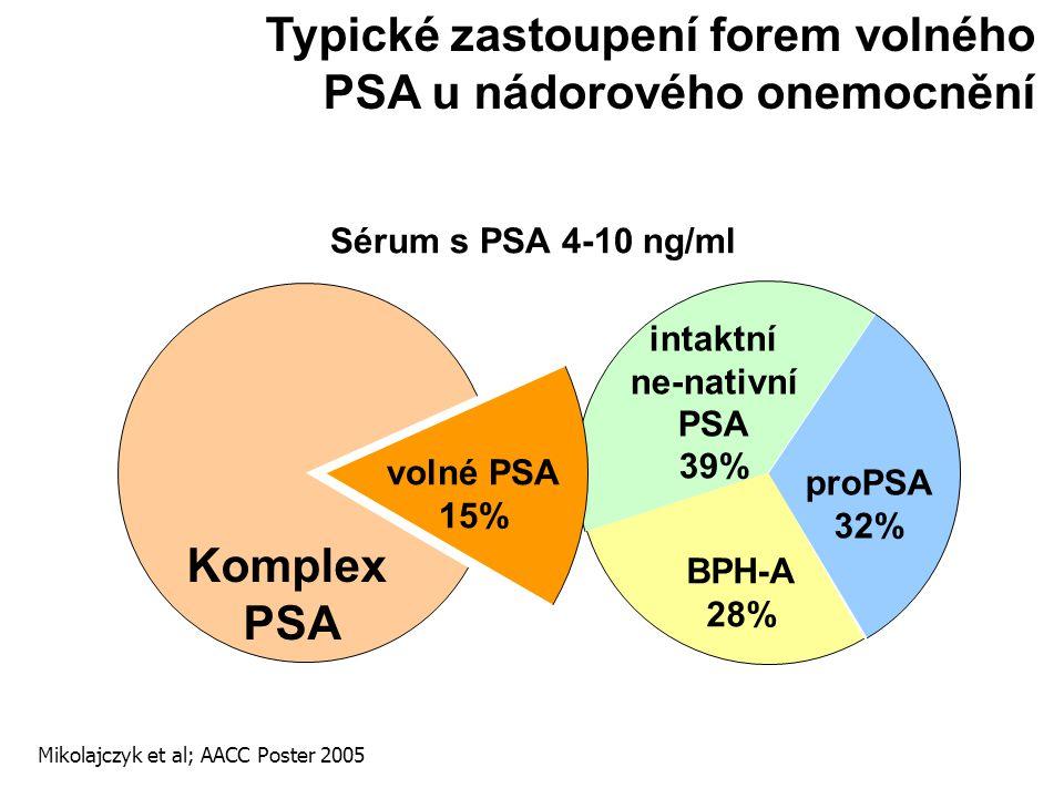 Typické zastoupení forem volného PSA u nádorového onemocnění
