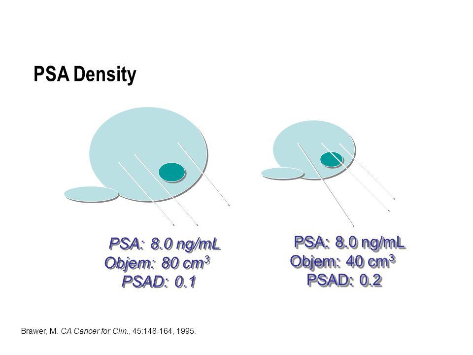PSA Density PSA: 8.0 ng/mL PSA: 8.0 ng/mL Objem: 80 cm3 Objem: 40 cm3