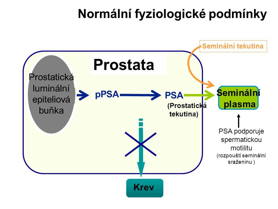 Prostata Prostate Normální fyziologické podmínky Prostatická luminální