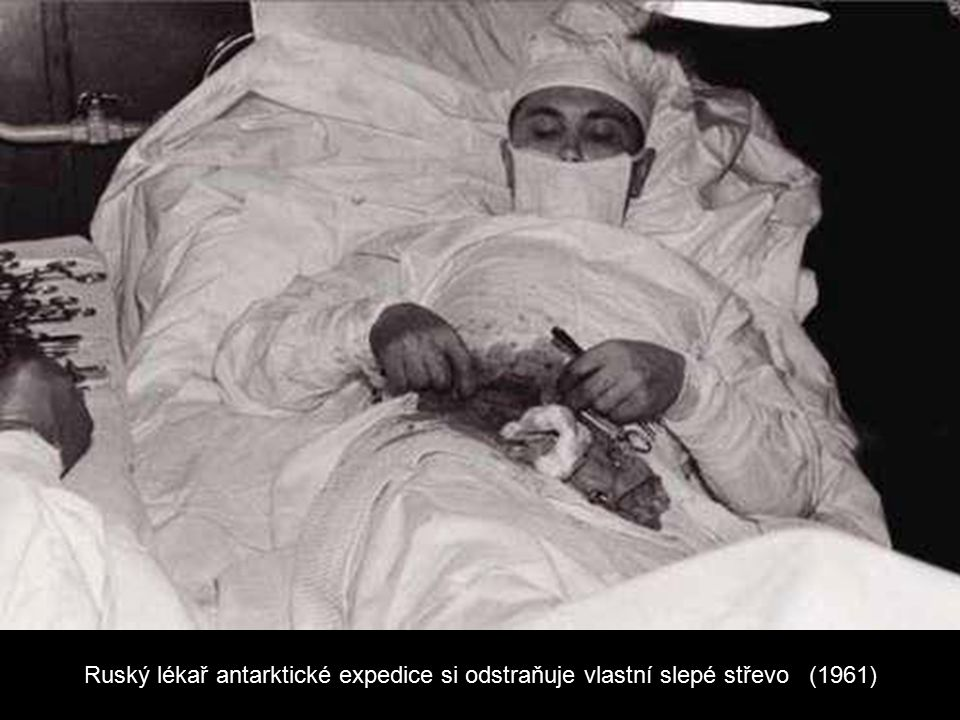 Ruský lékař antarktické expedice si odstraňuje vlastní slepé střevo (1961)
