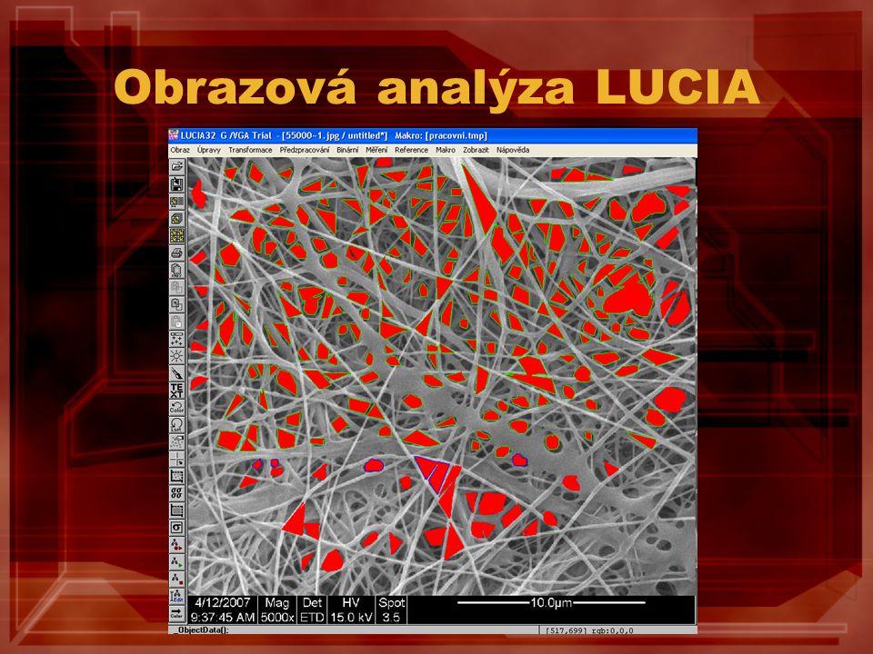 Obrazová analýza LUCIA