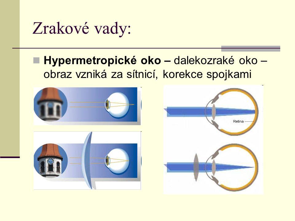 Zrakové vady: Hypermetropické oko – dalekozraké oko – obraz vzniká za sítnicí, korekce spojkami