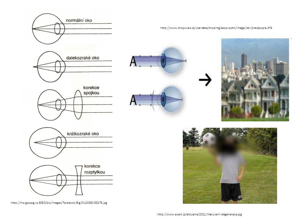 http://www.shop-web.cz/userdata/shopimg/asop-optik/Image/obr/presbyopie.JPG http://ms.gsospg.cz:5050/bio/Images/Textbook/Big/0110000/00275.jpg.
