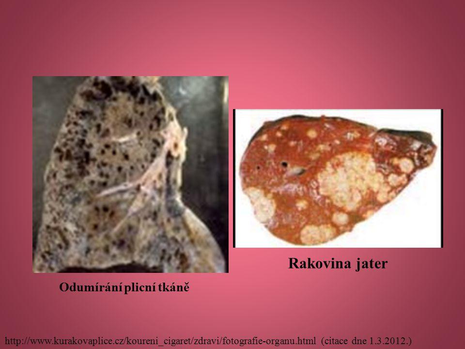 Rakovina jater Odumírání plicní tkáně