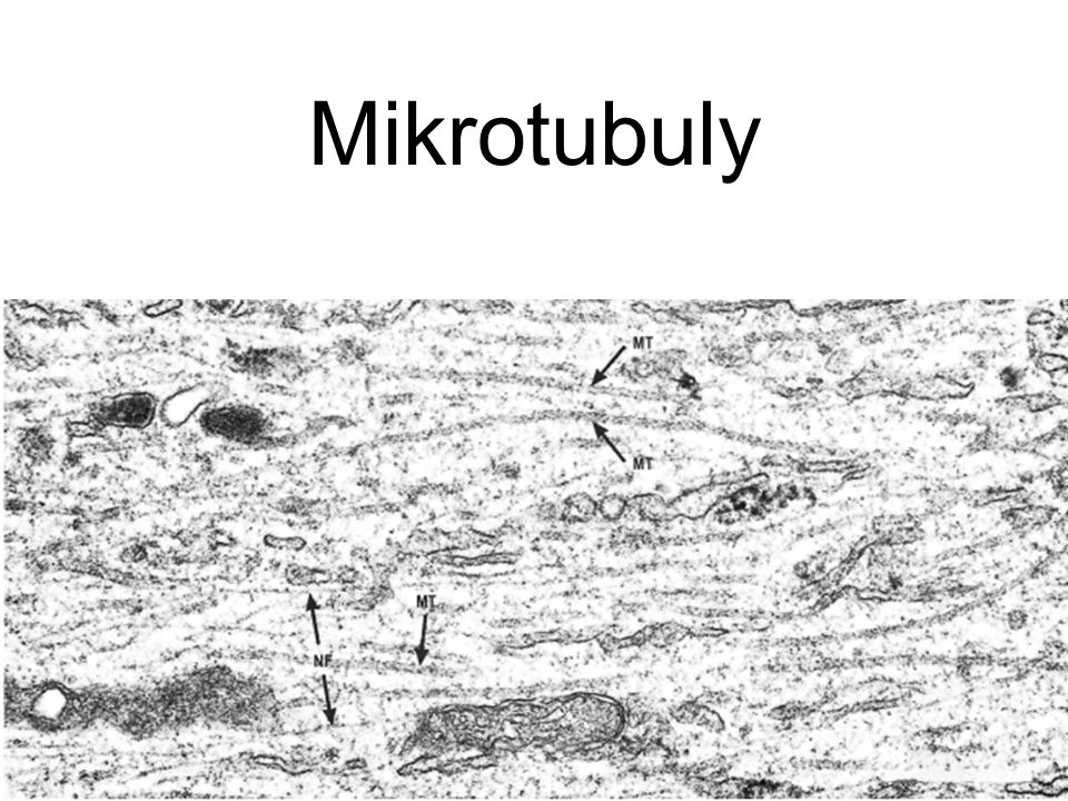 Mikrotubuly