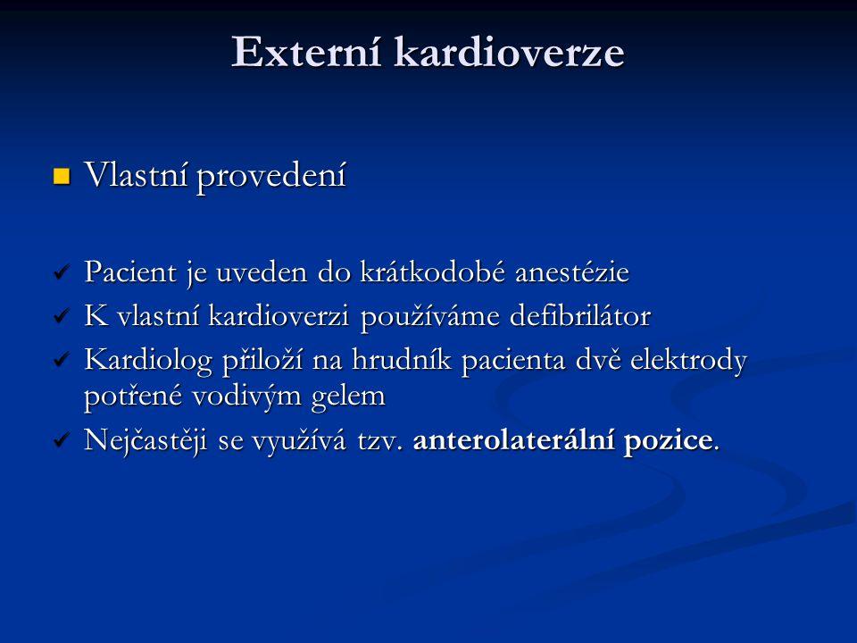 Externí kardioverze Vlastní provedení