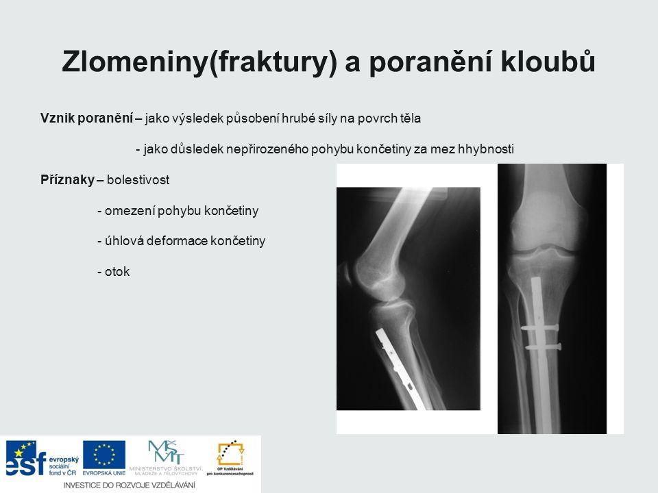 Zlomeniny(fraktury) a poranění kloubů