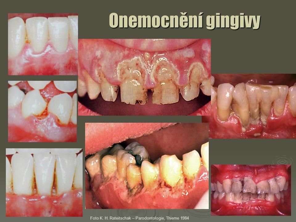 Onemocnění gingivy Foto K. H. Rateitschak – Parodontologie, Thieme 1984