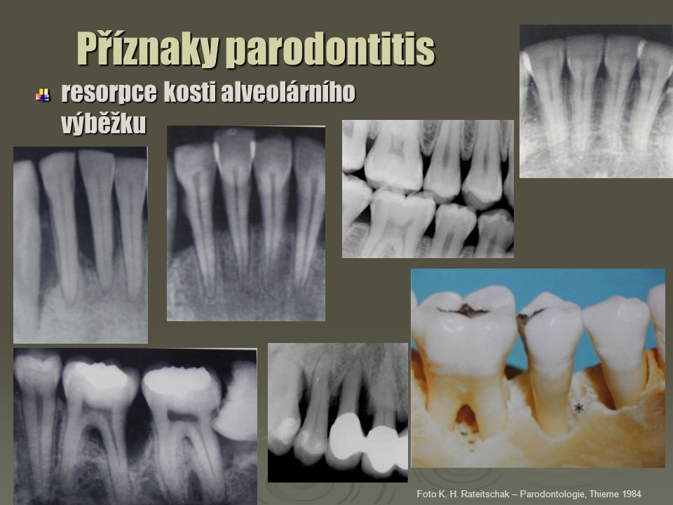 Příznaky parodontitis