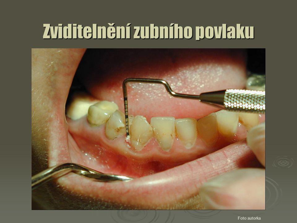 Zviditelnění zubního povlaku