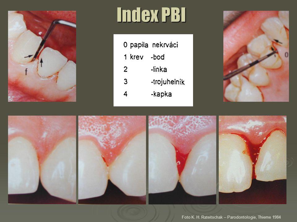Index PBI Foto K. H. Rateitschak – Parodontologie, Thieme 1984