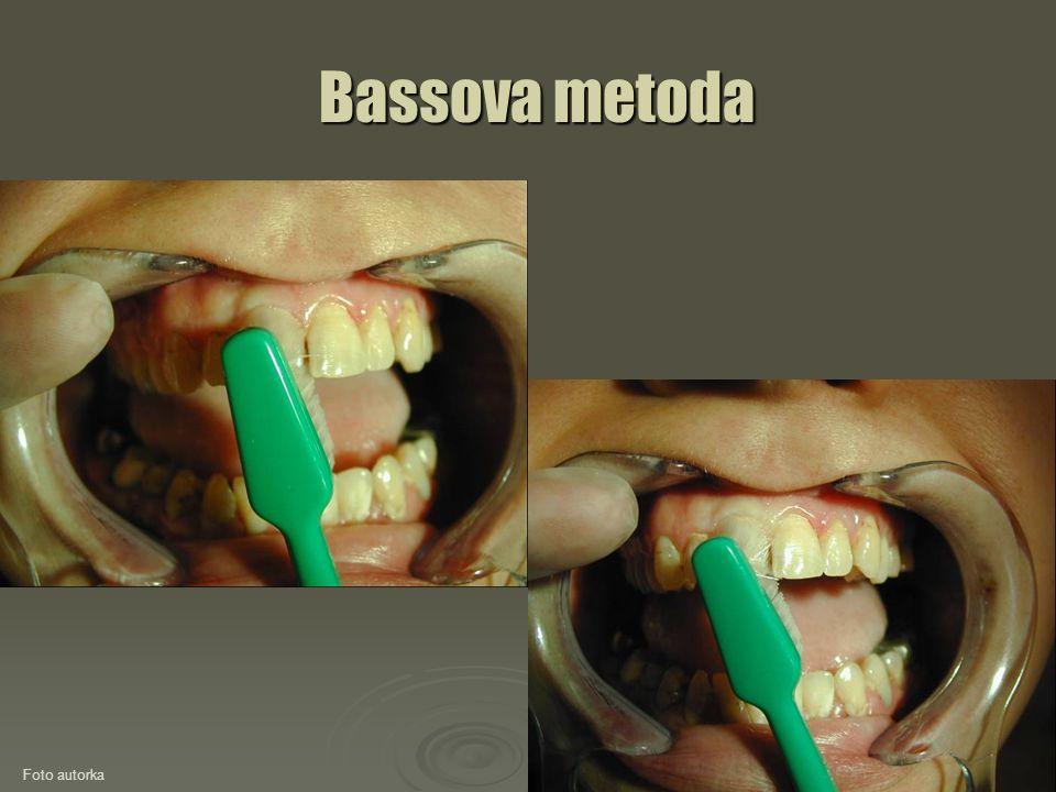 Bassova metoda Foto autorka