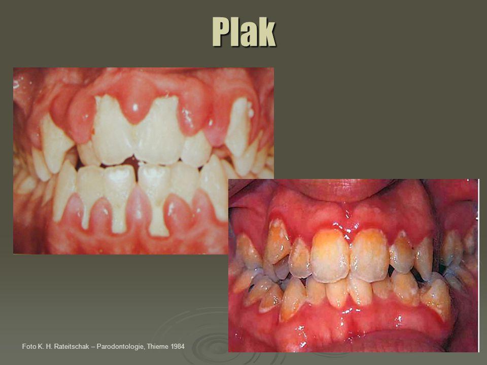Plak Foto K. H. Rateitschak – Parodontologie, Thieme 1984