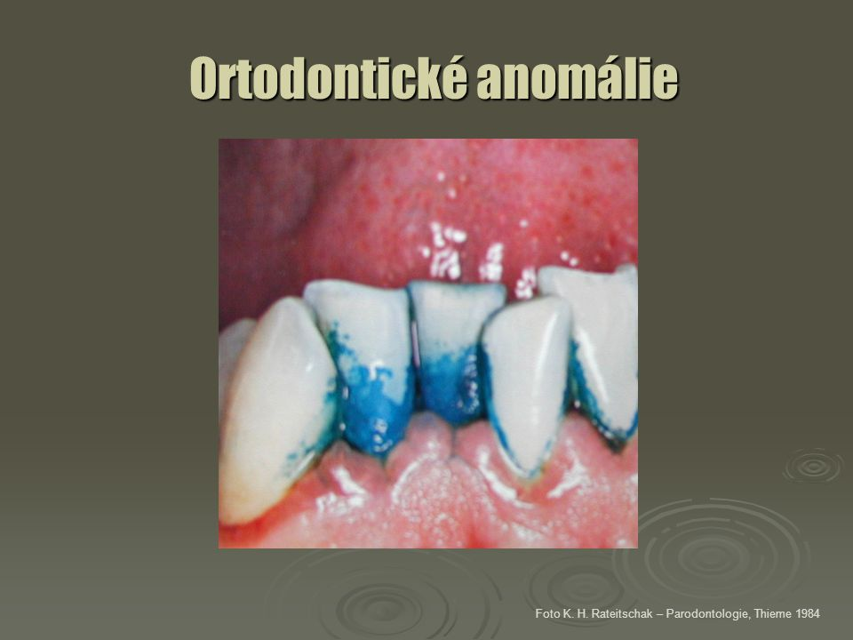 Ortodontické anomálie