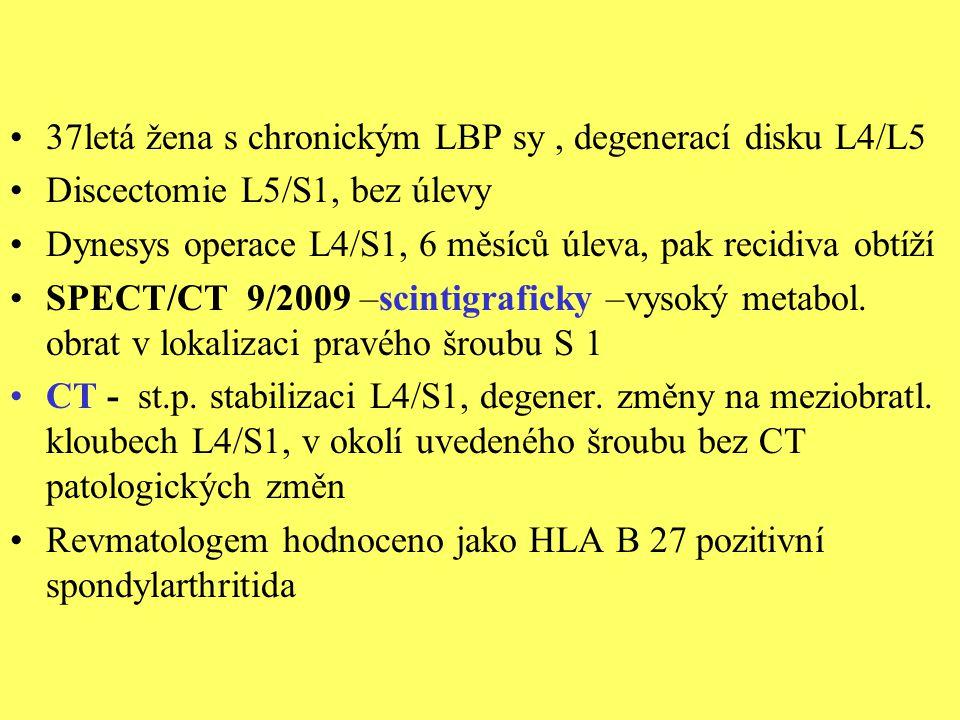 37letá žena s chronickým LBP sy , degenerací disku L4/L5