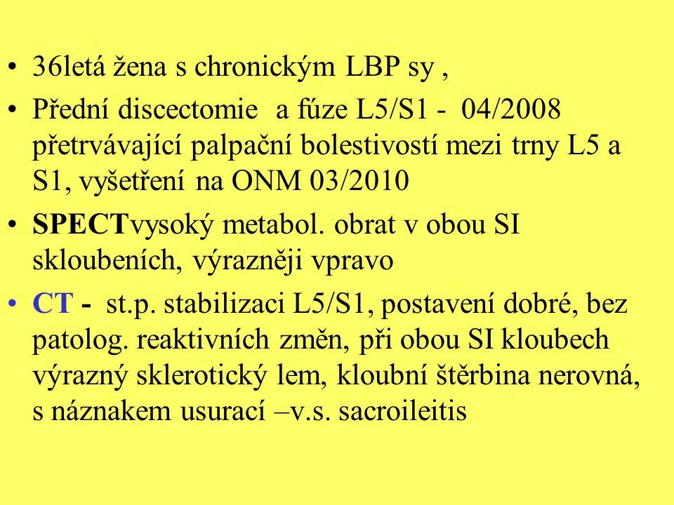 36letá žena s chronickým LBP sy ,