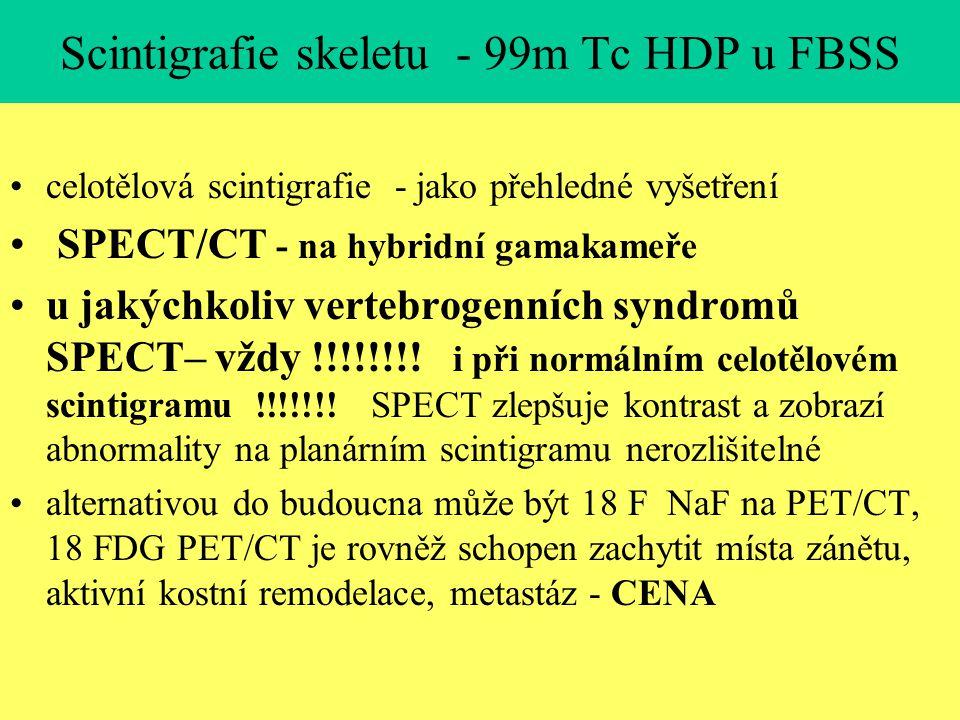 Scintigrafie skeletu - 99m Tc HDP u FBSS