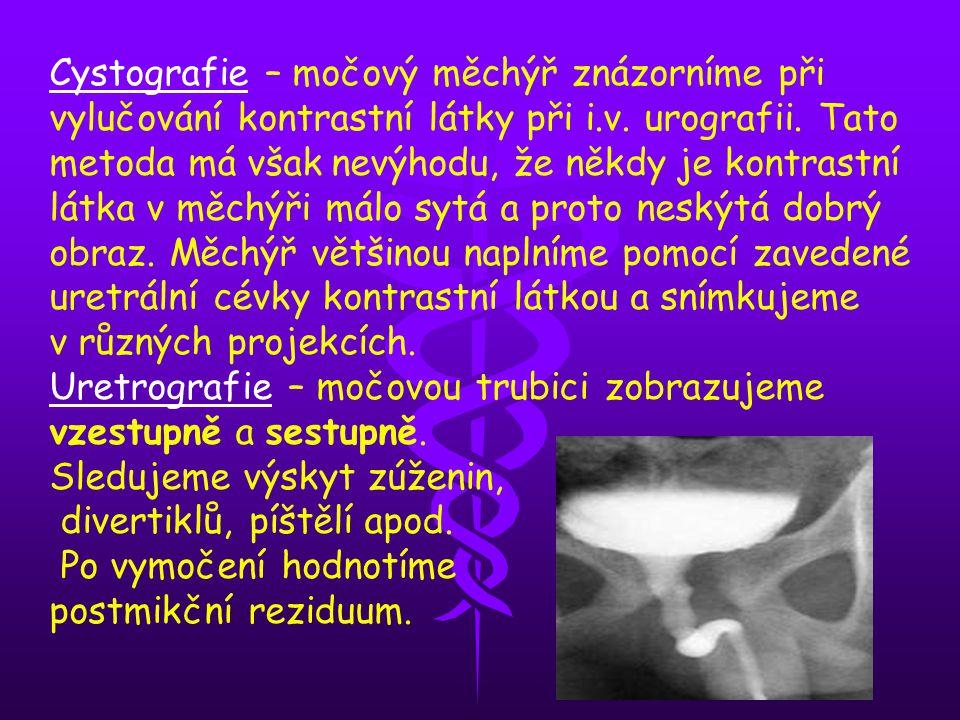Cystografie – močový měchýř znázorníme při vylučování kontrastní látky při i.v. urografii. Tato metoda má však nevýhodu, že někdy je kontrastní látka v měchýři málo sytá a proto neskýtá dobrý obraz. Měchýř většinou naplníme pomocí zavedené uretrální cévky kontrastní látkou a snímkujeme v různých projekcích.