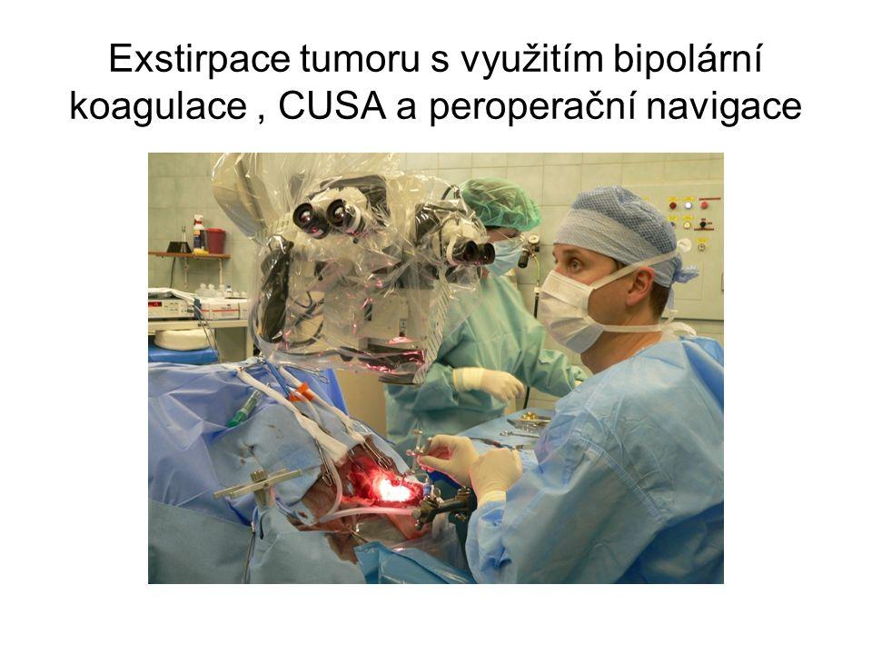 Exstirpace tumoru s využitím bipolární koagulace , CUSA a peroperační navigace