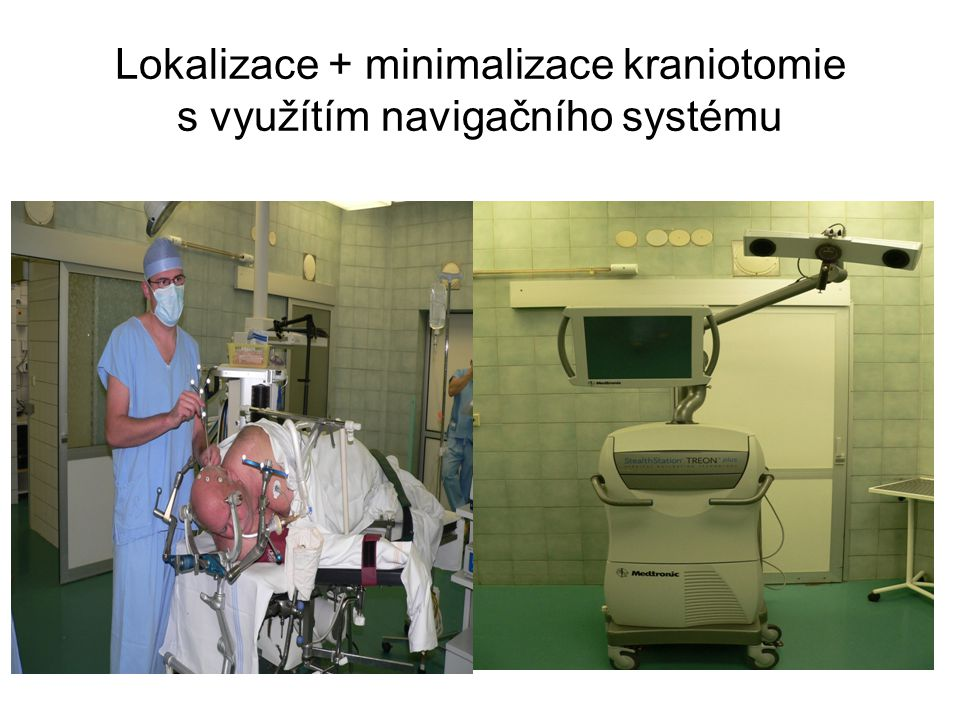 Lokalizace + minimalizace kraniotomie s využítím navigačního systému