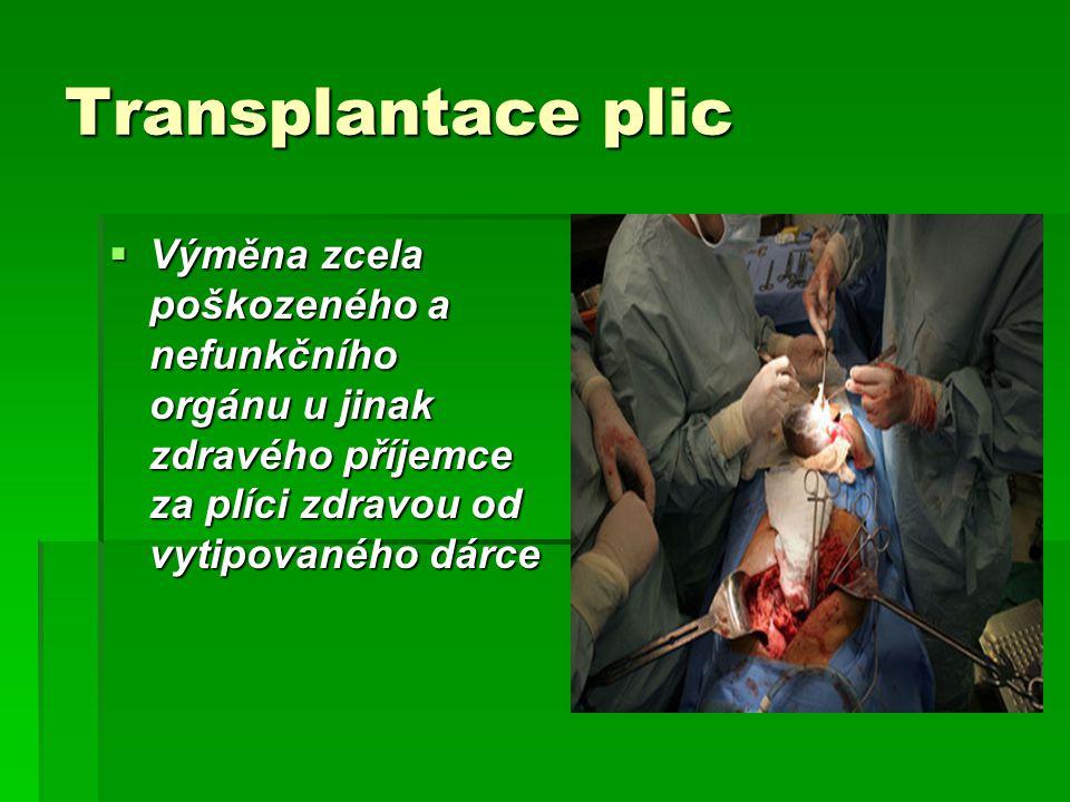 Transplantace plic Výměna zcela poškozeného a nefunkčního orgánu u jinak zdravého příjemce za plíci zdravou od vytipovaného dárce.
