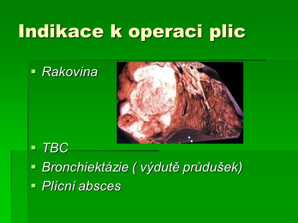 Indikace k operaci plic
