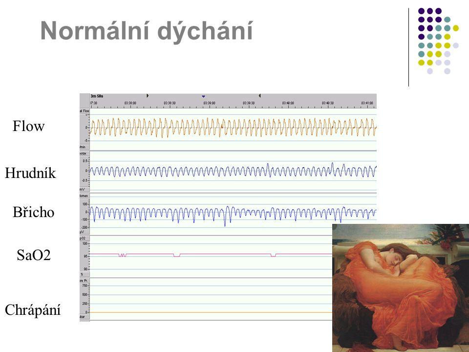 Normální dýchání Flow Hrudník Břicho SaO2 Chrápání
