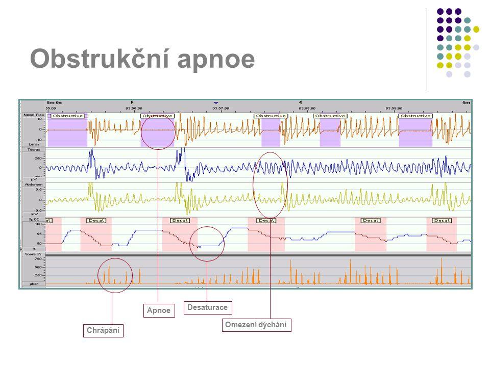 Obstrukční apnoe Apnoe Desaturace Omezení dýchání Chrápání
