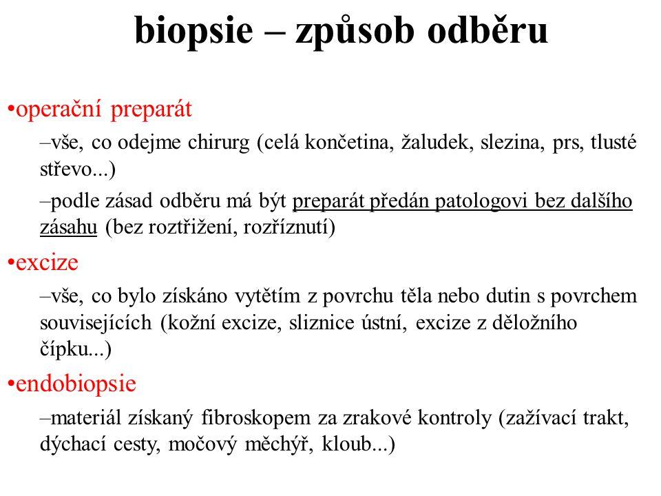 biopsie – způsob odběru