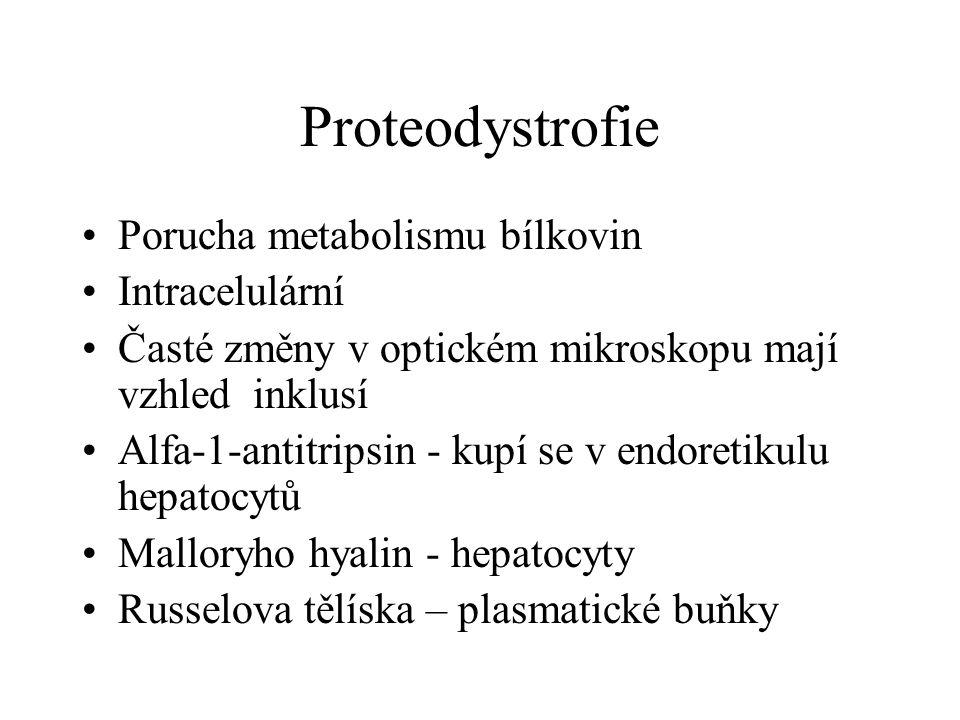 Proteodystrofie Porucha metabolismu bílkovin Intracelulární
