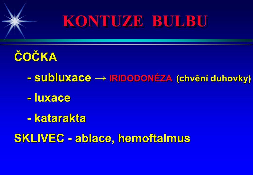 KONTUZE BULBU ČOČKA - subluxace → IRIDODONÉZA (chvění duhovky)