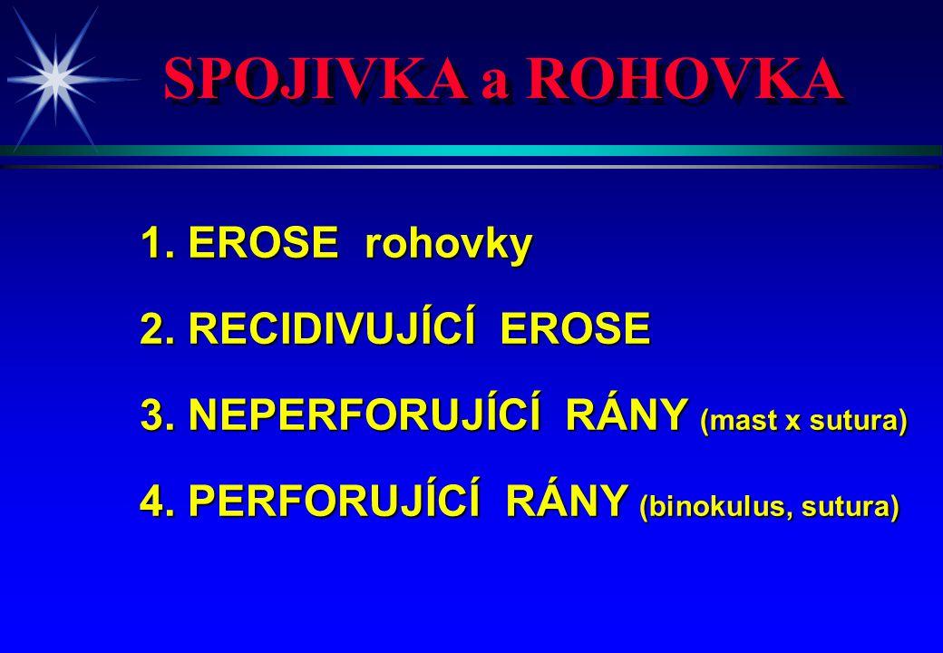 SPOJIVKA a ROHOVKA 1. EROSE rohovky 2. RECIDIVUJÍCÍ EROSE