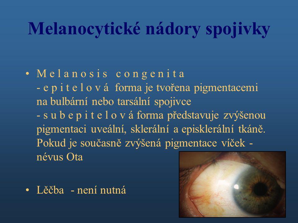 Melanocytické nádory spojivky