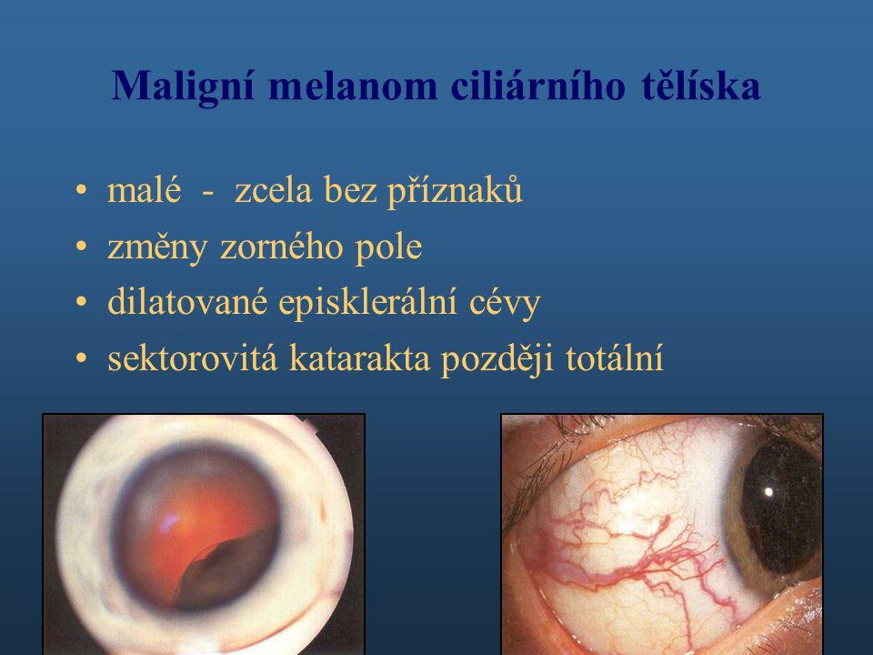 Maligní melanom ciliárního tělíska